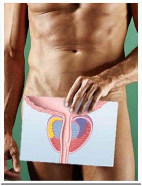 Простатит варикозное расширение настойка маклюры простатита