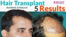 5 Profiles Hair Transplant Before After Results | Medispa INDIA | UK | USA | Australia | Canada