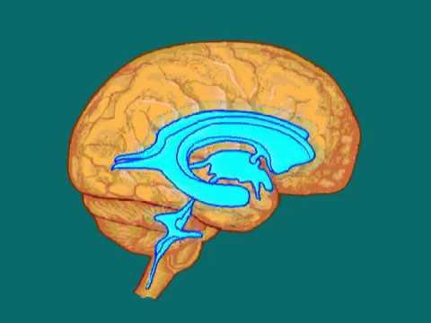 Внутричерепная гипертензия © intracranial hypertension