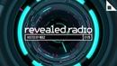 Revealed Radio 175 REEZ