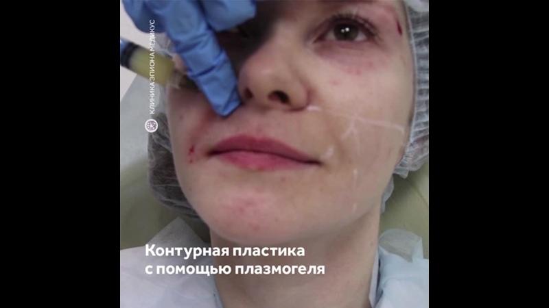 Обзор процедуры плазмогель в Эпионе Медикус коррекция носогубных складок