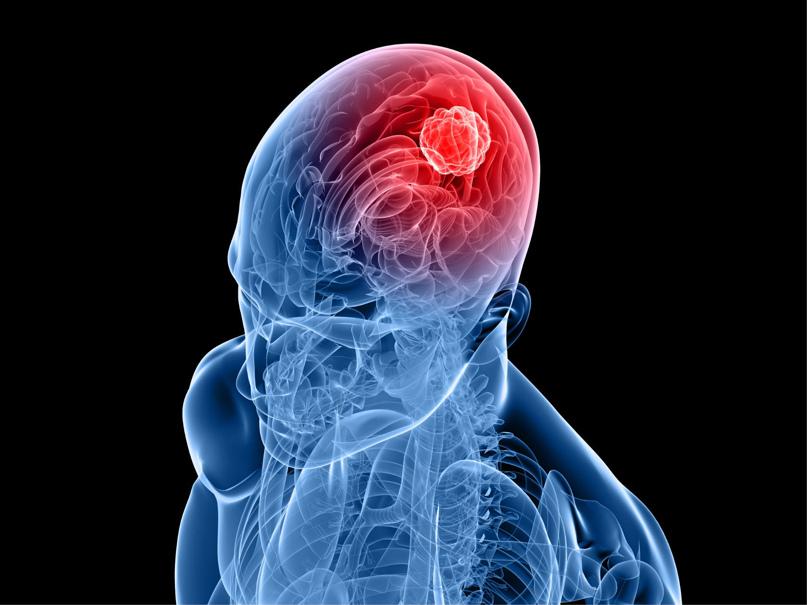 Важные симптомы опухоли