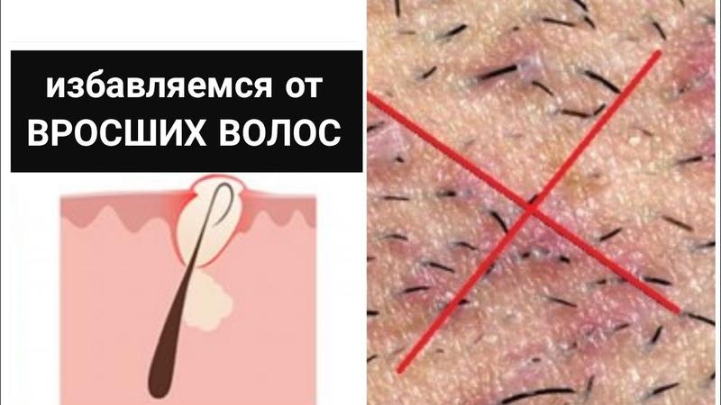 Как избавиться от вросших волос в зоне бикини и подмышек навсегда за 5 минутВрастающие волосы