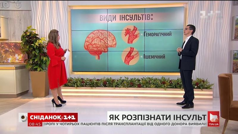 Як розпізнати перші симптоми інсульту